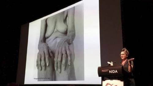 藝術家Ella Dreyfus刊登的一張年老女人裸體照