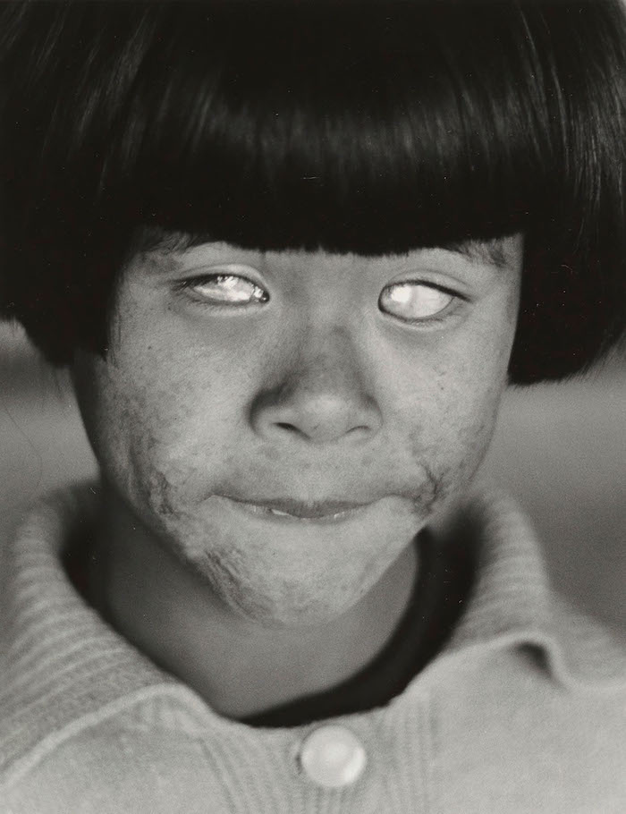 """The Blind Girl"" från Hiroshima, 1963"