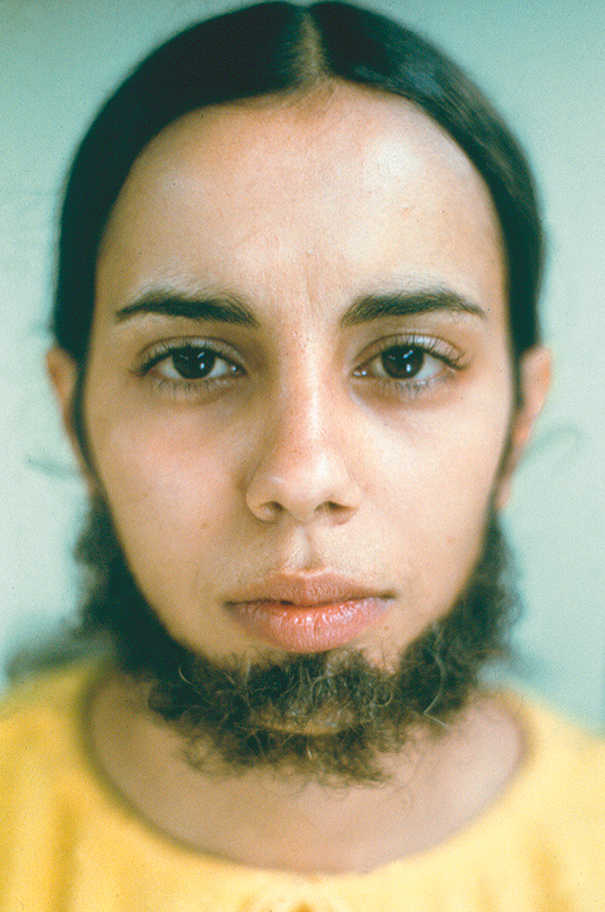 "Ana Mendieta, ""Untitled (Facial Hair Transplants)"", 1972. Foto: © The Estate of Ana Mendieta Collection, LLC Courtesy Galerie Lelong & Co."