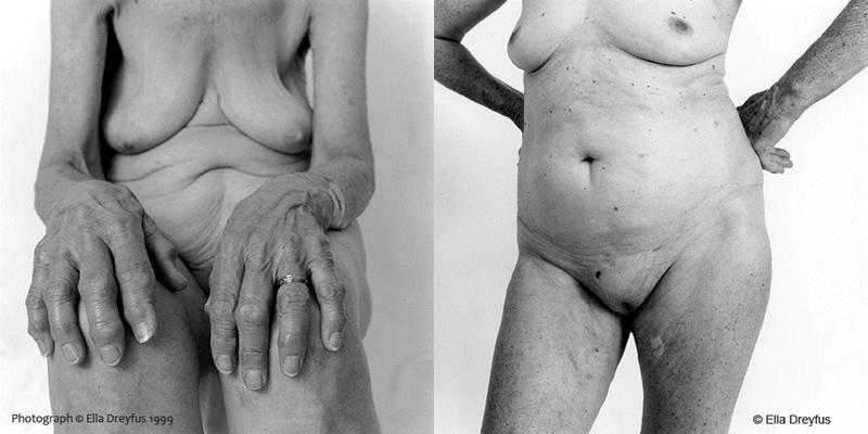 Age and Consent. Imagen de Ella Dreyfus